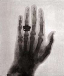 first-human-x-ray-1896